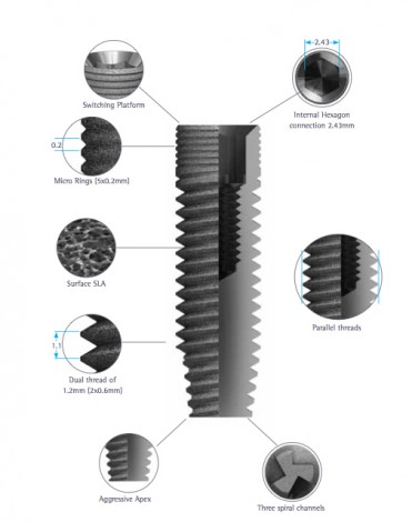 classic-implant3